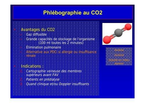 Phlébographie au CO2 - SFAV