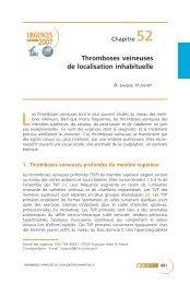 Thromboses veineuses de localisation inhabituelle - SFMU
