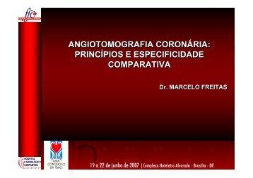 Princípios e Especificidade Comparativa