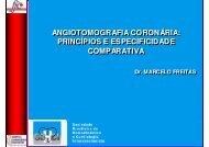 Angiotomografia coronária: princípios e especificidade comparativa