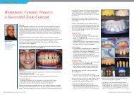 Biomimetic Ceramic Veneers - Smile Dental Journal