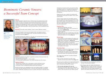 Biomimetic Ceramic Veneers - Smile Dental Journal