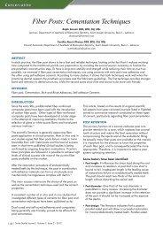 Fiber Posts: Cementation Techniques - Smile Dental Journal