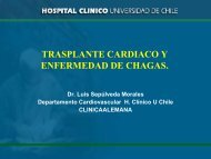 Trasplante cardiaco y enfermedad de Chagas