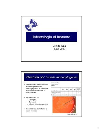 Infectología al Instante
