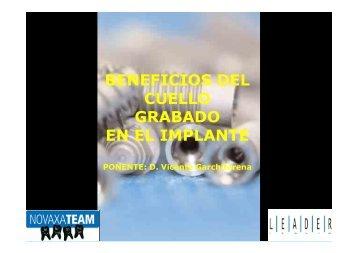 BENEFICIOS DEL CUELLO GRABADO EN EL IMPLANTE - Emagister