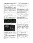 Aorta detection in ultrasound medical image sequences using ... - ISIF - Page 7