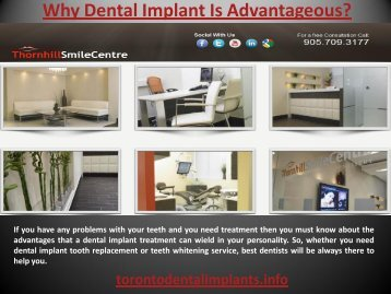 Why Dental Implant is Advantageous