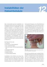 Instabilitäten der Halswirbelsäule - Spitta