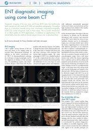 ENt diagnostic imaging using cone beam Ct - Soredex