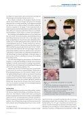 Behandling ved agenesi af maksillens laterale incisiv - Aarhus ... - Page 2