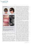 Behandling ved agenesi af maksillens laterale incisiv - Aarhus ... - Page 3