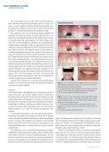 Behandling ved agenesi af maksillens laterale incisiv - Aarhus ... - Page 5