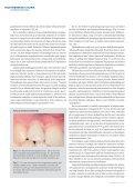 Behandling ved agenesi af maksillens laterale incisiv - Aarhus ... - Page 7