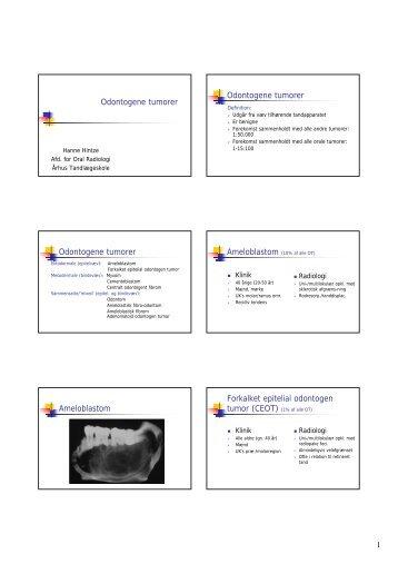 1 Odontogene tumorer Odontogene tumorer Odontogene tumorer ...