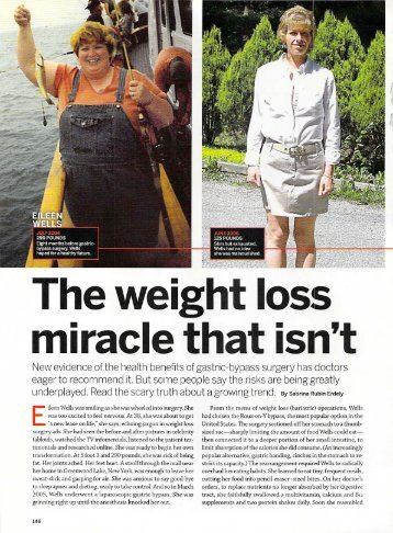 The weight loss miracle that isn't - Sabrina Rubin Erdely