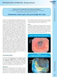Trattamento endoscopico dei grossi polipi del colon - Sied