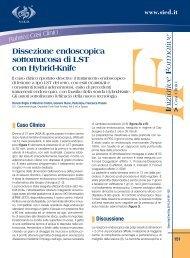 Dissezione endoscopica sottomucosa di LST con Hybrid-Knife - Sied