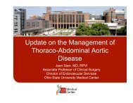 Update on the Management of Thoraco-Abdominal Aortic Disease