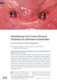 Herstellung einer Cover-Denture Prothese im zahnlosen Unterkiefer ...