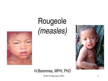 Rougeole - Institut de la francophonie pour la médecine tropicale