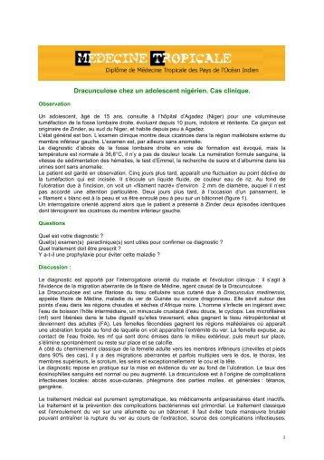 Dracunculose - Médecine tropicale