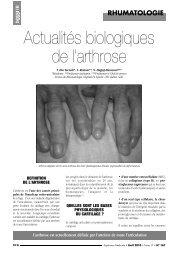 Actualités biologiques de l'arthrose