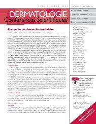 Aperçu du carcinome basocellulaire - Dermatologie conférences ...