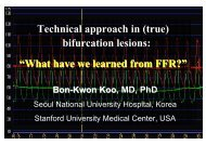 Technical approach in (true) bifurcation lesions ... - summitMD.com