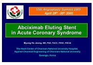 Abciximab Eluting Stent in Acute Coronary Syndrome - summitMD.com