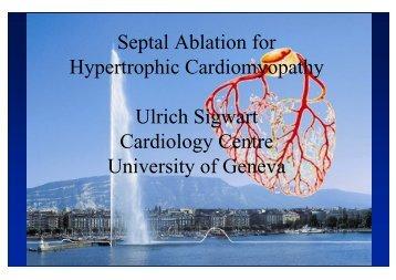 Septal Ablation for Hypertrophic Cardiomyopathy ... - summitMD.com