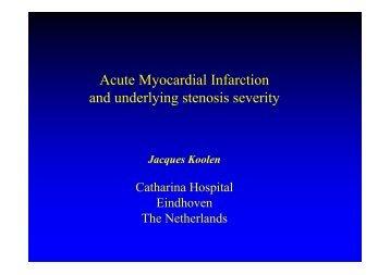 Acute Myocardial Infarction and underlying ... - summitMD.com
