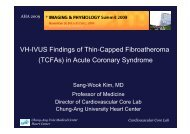VH-IVUS Findings of Thin-Capped Fibroatheroma ... - summitMD.com