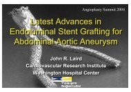 Latest Advances in Endoluminal Stent Grafting for ... - summitMD.com