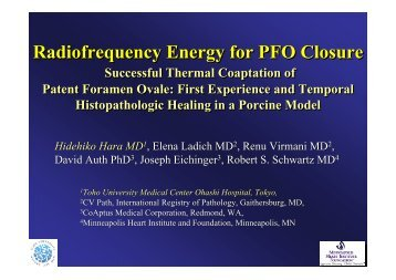 Radiofrequency Energy for PFO Closure ... - summitMD.com