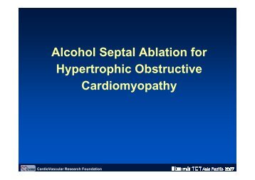 Alcohol Septal Ablation for Hypertrophic ... - summitMD.com