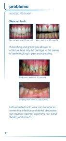 Splint for grinding - Carnegie Dental Group - Page 4