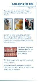 Splint for grinding - Carnegie Dental Group - Page 7