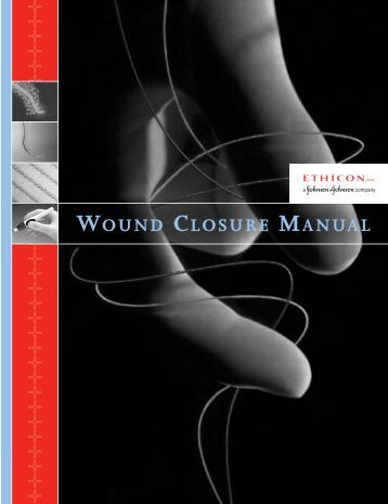 Stitching Wounds-When There is No Hospital Wound-closure-manual-pdf-penn-medicine
