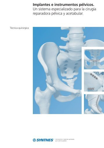 Implantes e instrumentos pélvicos Técnica quirúrgica - Synthes