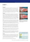 USING ADAPTIC TOUCH® Non-Adhering Silicone ... - Systagenix - Page 5