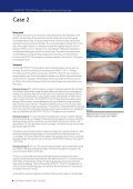 USING ADAPTIC TOUCH® Non-Adhering Silicone ... - Systagenix - Page 6