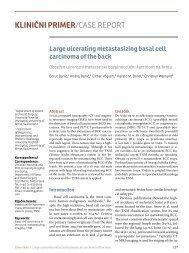 Large ulcerating metastasizing basal cell carcinoma of the back