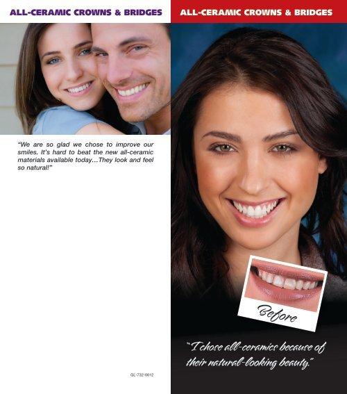 All-Ceramic Brochure - Glidewell Dental Labs