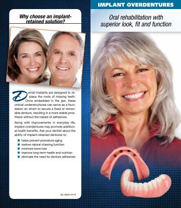 Implant Overdentures - Glidewell Dental Labs