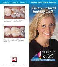 Prismatik CZ - Glidewell Dental Labs