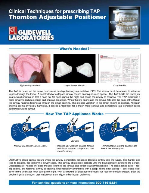 Clinical Techniques For Prescribing TAP - Glidewell Dental Labs
