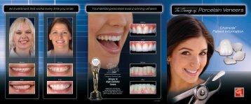 Porcelain Veneers - Glidewell Dental Labs