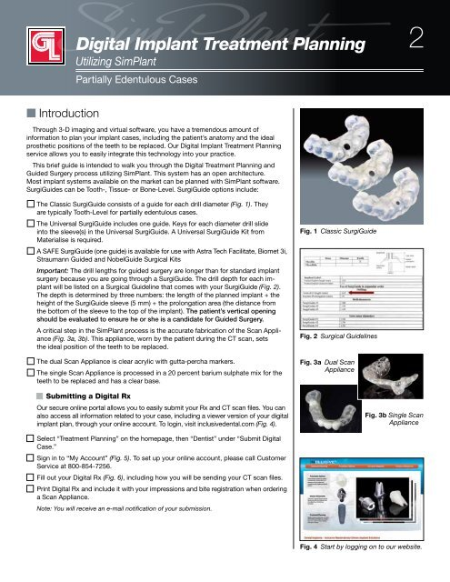 SimPlant - Partially Edentulous - Glidewell Dental Labs