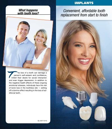 Implants - Glidewell Dental Labs